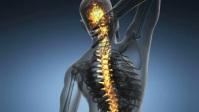 Back pain Miniature YouTube template