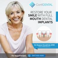 Dental Implants Carré (1:1) template