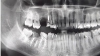 tooth X-ray video YouTube-Miniaturansicht template